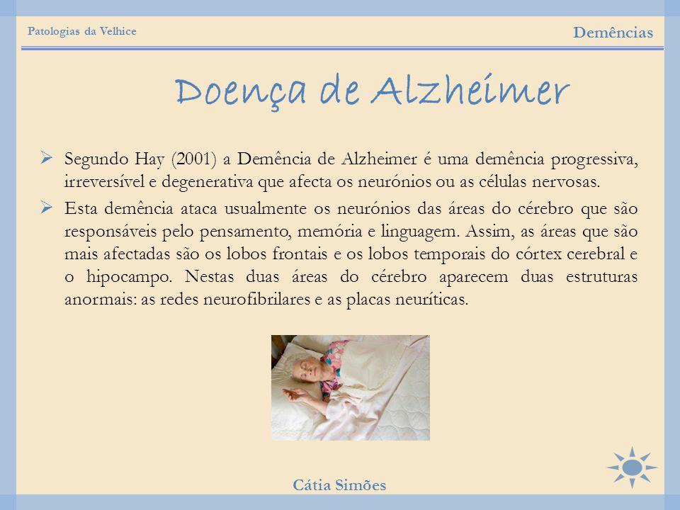  Segundo Hay (2001) a Demência de Alzheimer é uma demência progressiva, irreversível e degenerativa que afecta os neurónios ou as células nervosas. 