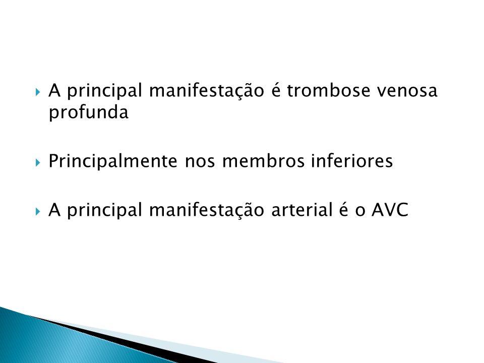  A principal manifestação é trombose venosa profunda  Principalmente nos membros inferiores  A principal manifestação arterial é o AVC
