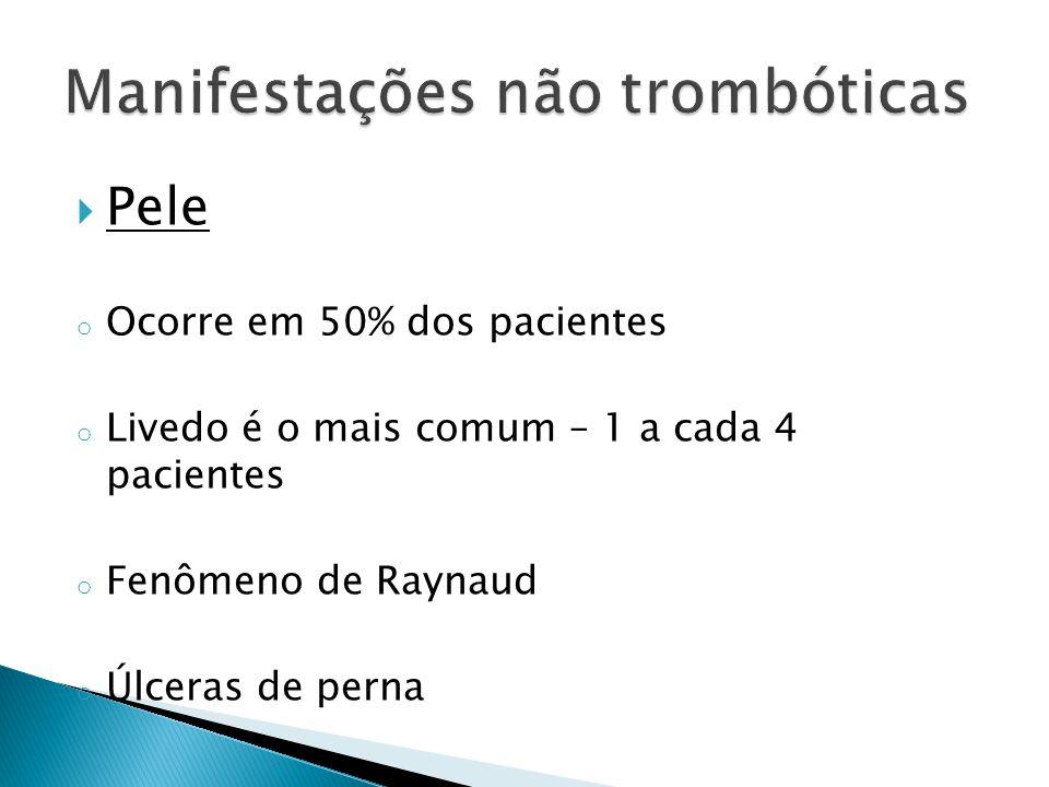  Pele o Ocorre em 50% dos pacientes o Livedo é o mais comum – 1 a cada 4 pacientes o Fenômeno de Raynaud o Úlceras de perna