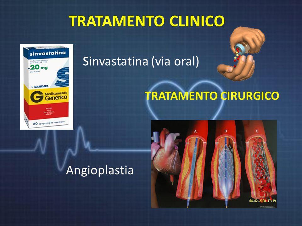 TRATAMENTO CLINICO Sinvastatina (via oral) TRATAMENTO CIRURGICO Angioplastia