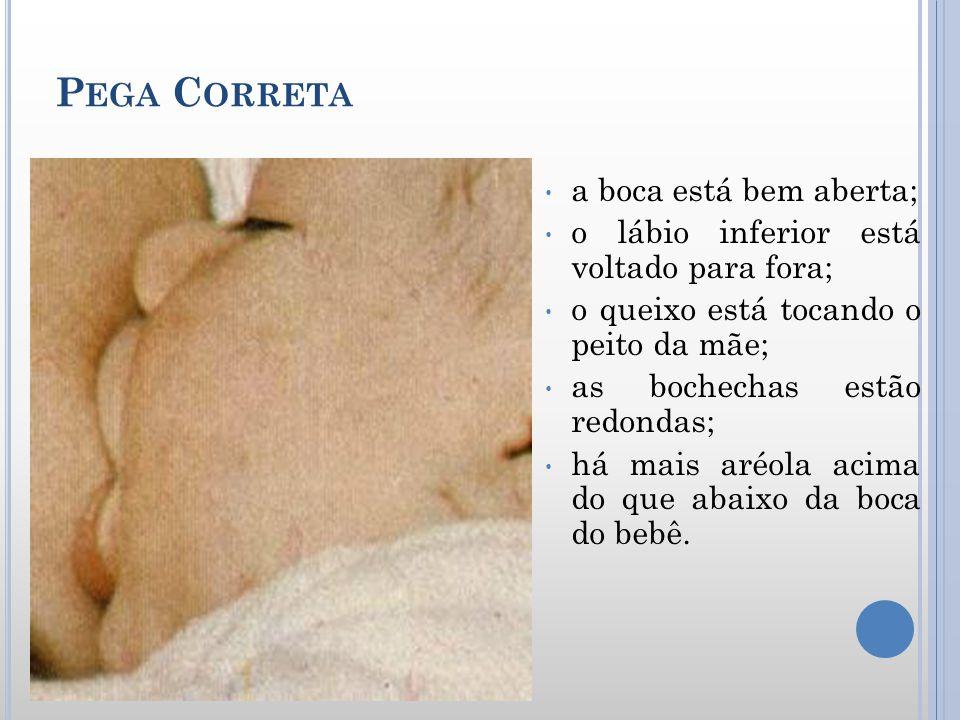 P EGA C ORRETA a boca está bem aberta; o lábio inferior está voltado para fora; o queixo está tocando o peito da mãe; as bochechas estão redondas; há