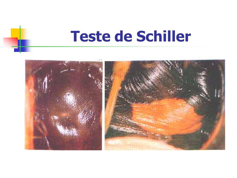 Teste de Schiller