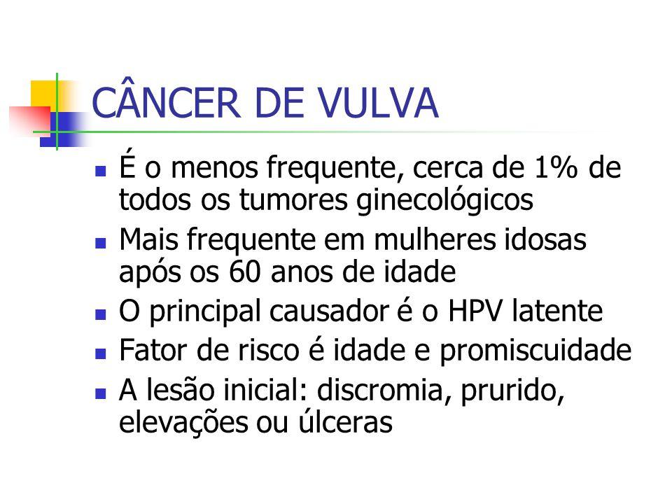 CÂNCER DE VULVA É o menos frequente, cerca de 1% de todos os tumores ginecológicos Mais frequente em mulheres idosas após os 60 anos de idade O principal causador é o HPV latente Fator de risco é idade e promiscuidade A lesão inicial: discromia, prurido, elevações ou úlceras