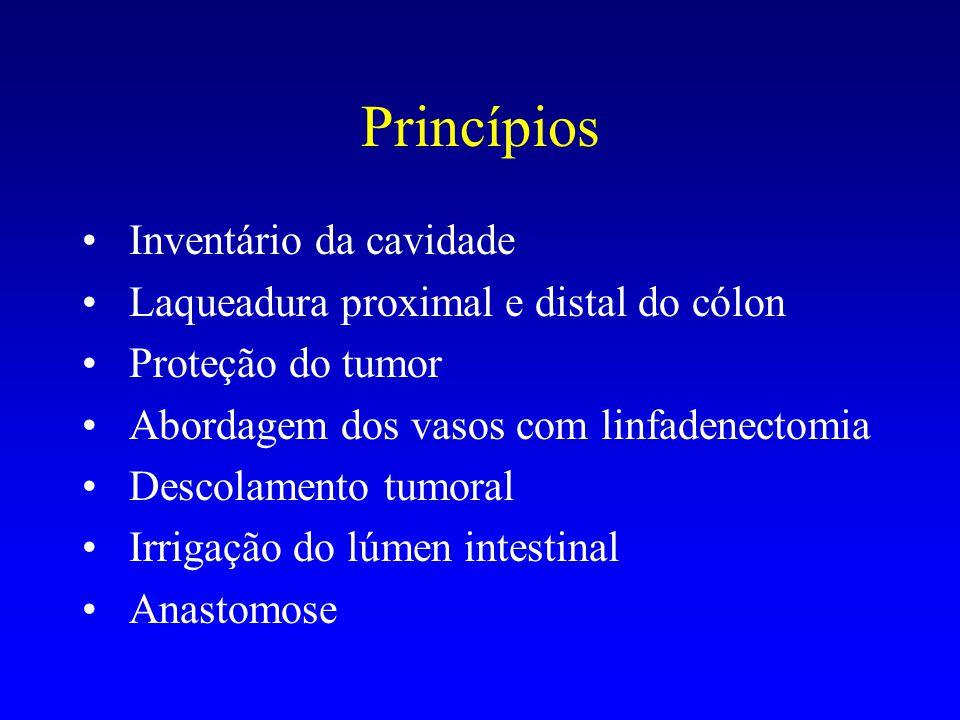 Princípios Inventário da cavidade Laqueadura proximal e distal do cólon Proteção do tumor Abordagem dos vasos com linfadenectomia Descolamento tumoral