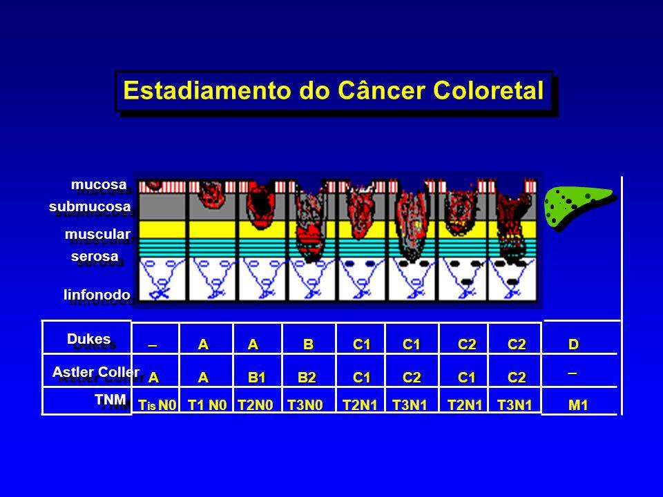 Astler Coller Dukes TNM _ AB2AB1 T is N0 A T1 N0 A T2N0 C1C1 T3N0T2N1 C2 C2D C1 C2 C2 _ M1T3N1 B C1 Estadiamento do Câncer Coloretal mucosa submucosa
