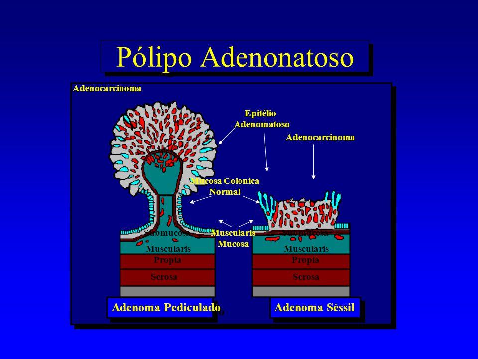 Adenoma Pediculado Submucosa Adenocarcinoma Mucosa Colonica Normal Epitélio Adenomatoso Muscularis Mucosa Adenocarcinoma Adenoma Séssil Muscularis Pro