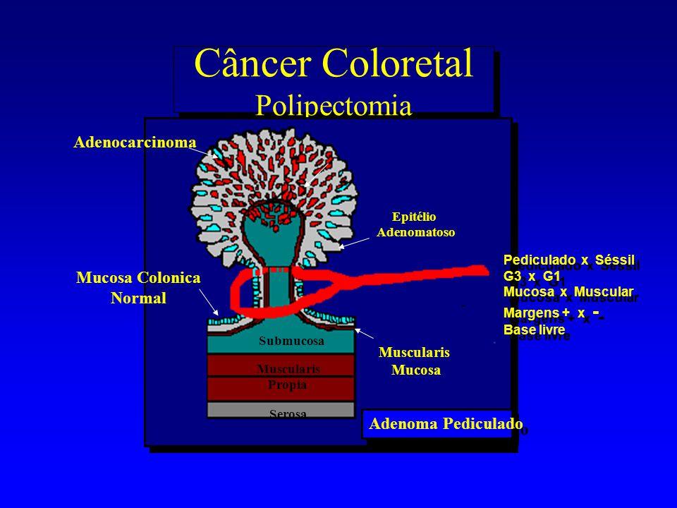 Câncer Coloretal Polipectomia Adenoma Pediculado Submucosa Mucosa Colonica Normal Muscularis Mucosa Adenocarcinoma Muscularis Propia Serosa Epitélio A