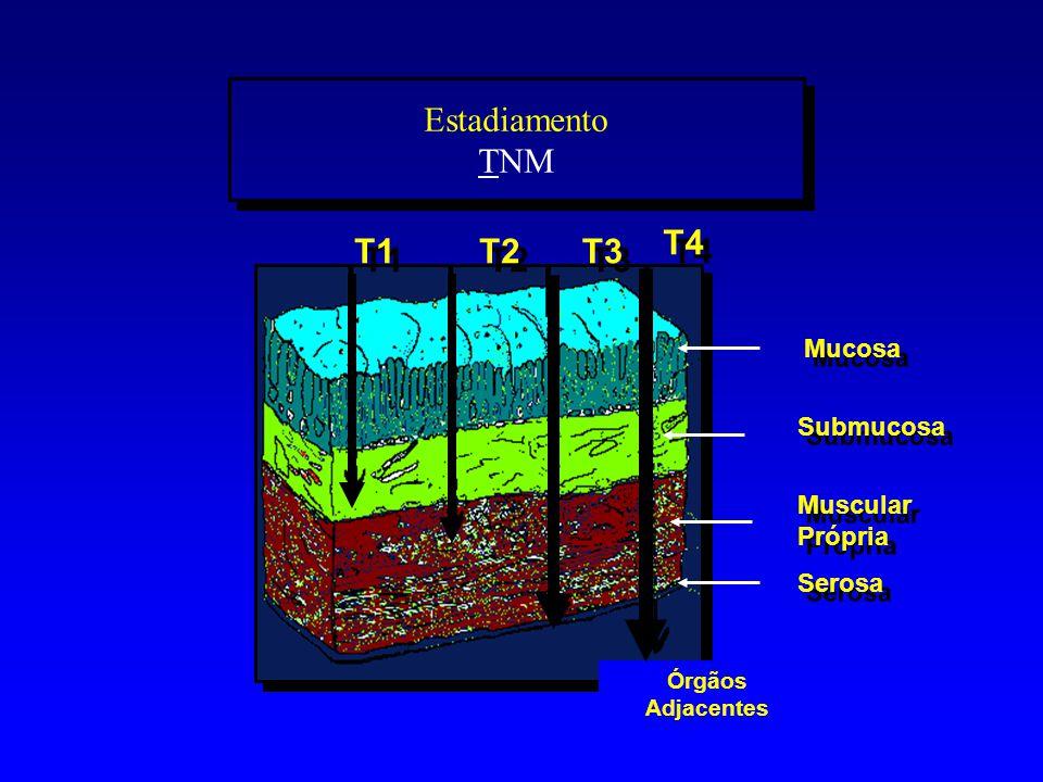 Estadiamento TNM Mucosa Submucosa Órgãos Adjacentes Serosa Muscular Própria Muscular Própria T1 T3 T2 T4