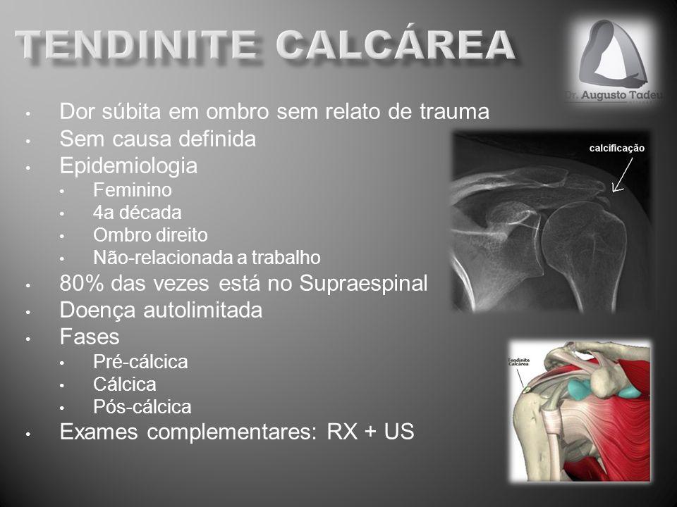 Dor súbita em ombro sem relato de trauma Sem causa definida Epidemiologia Feminino 4a década Ombro direito Não-relacionada a trabalho 80% das vezes es