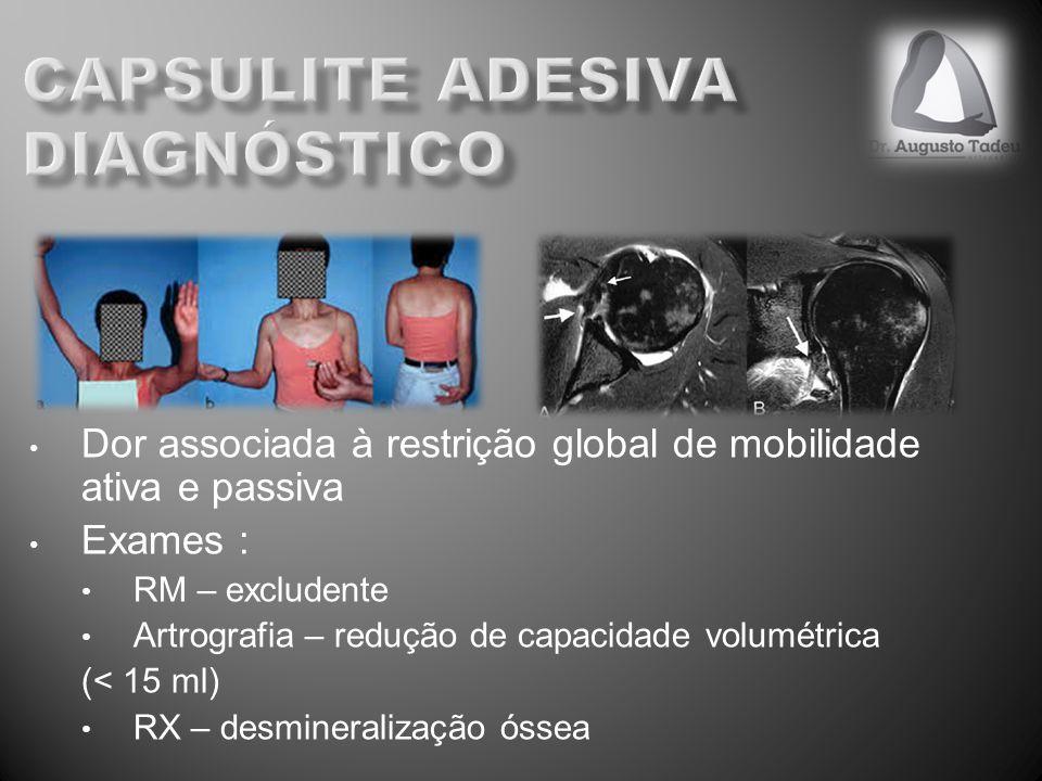 Dor associada à restrição global de mobilidade ativa e passiva Exames : RM – excludente Artrografia – redução de capacidade volumétrica (< 15 ml) RX –