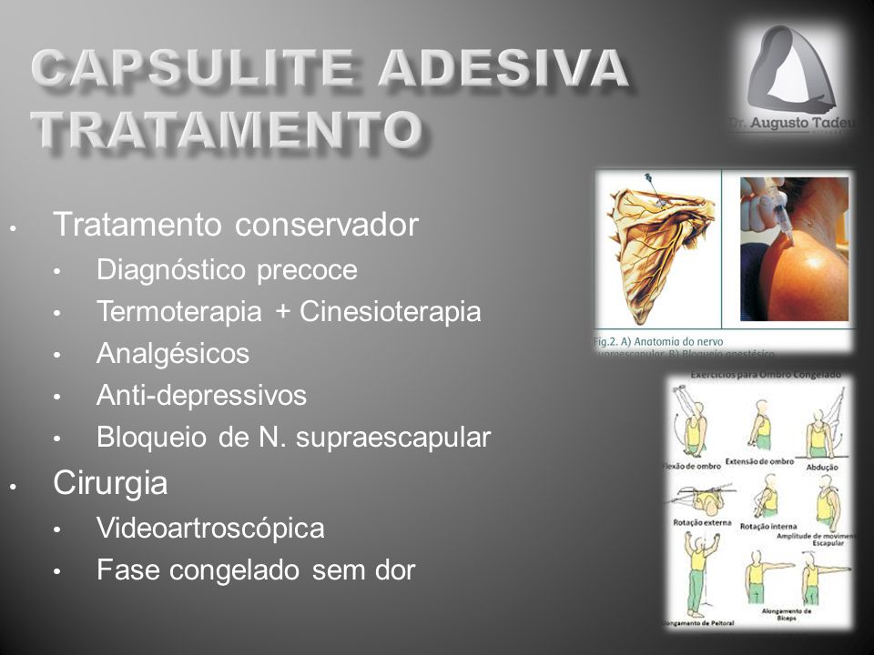 Tratamento conservador Diagnóstico precoce Termoterapia + Cinesioterapia Analgésicos Anti-depressivos Bloqueio de N. supraescapular Cirurgia Videoartr