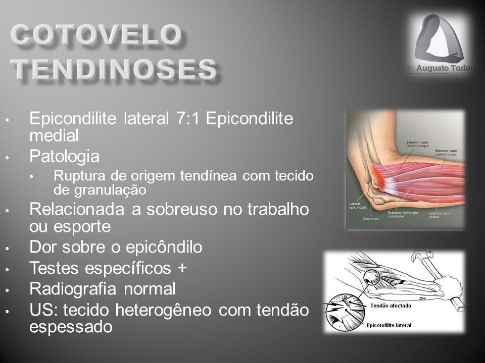Epicondilite lateral 7:1 Epicondilite medial Patologia Ruptura de origem tendínea com tecido de granulação Relacionada a sobreuso no trabalho ou espor
