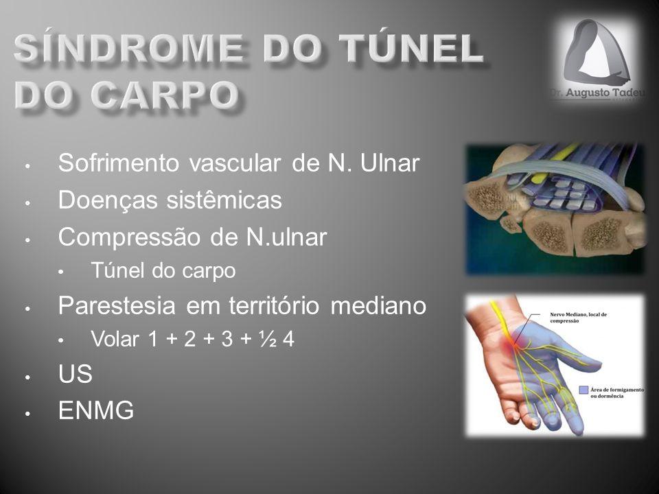 Sofrimento vascular de N. Ulnar Doenças sistêmicas Compressão de N.ulnar Túnel do carpo Parestesia em território mediano Volar 1 + 2 + 3 + ½ 4 US ENMG