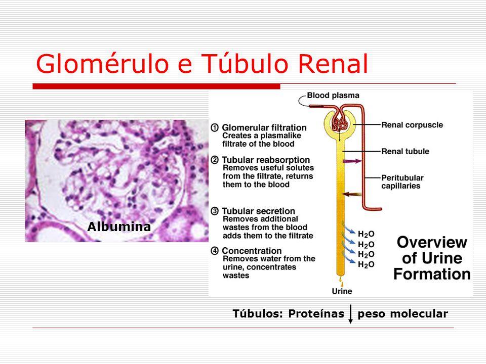 Glomérulo e Túbulo Renal Albumina Túbulos: Proteínas peso molecular