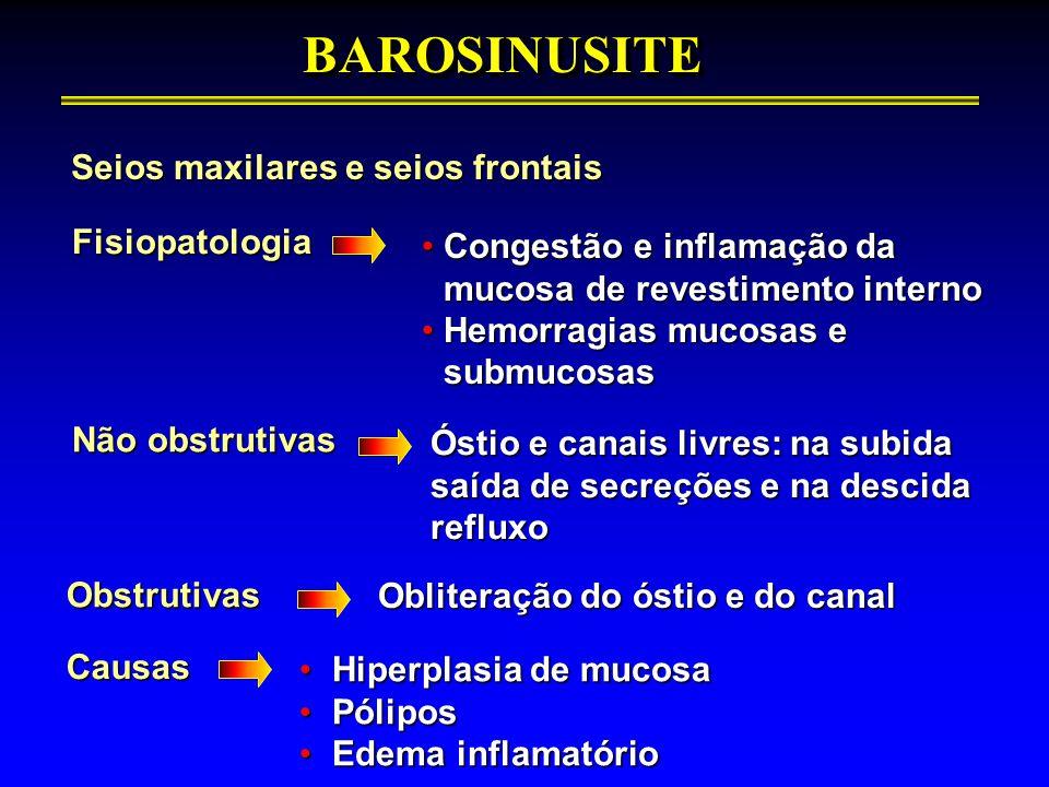 Seios maxilares e seios frontais BAROSINUSITEBAROSINUSITEFisiopatologia Congestão e inflamação da mucosa de revestimento internoCongestão e inflamação