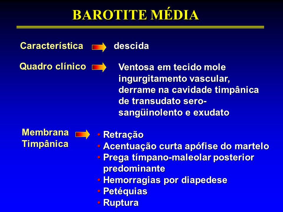 BAROTITE MÉDIA Característicadescida Quadro clínico Ventosa em tecido mole ingurgitamento vascular, derrame na cavidade timpânica de transudato sero-