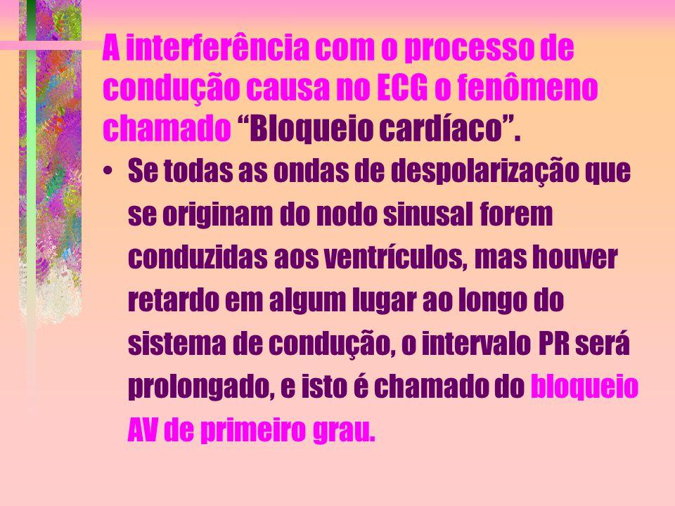 """A interferência com o processo de condução causa no ECG o fenômeno chamado """"Bloqueio cardíaco"""". Se todas as ondas de despolarização que se originam do"""