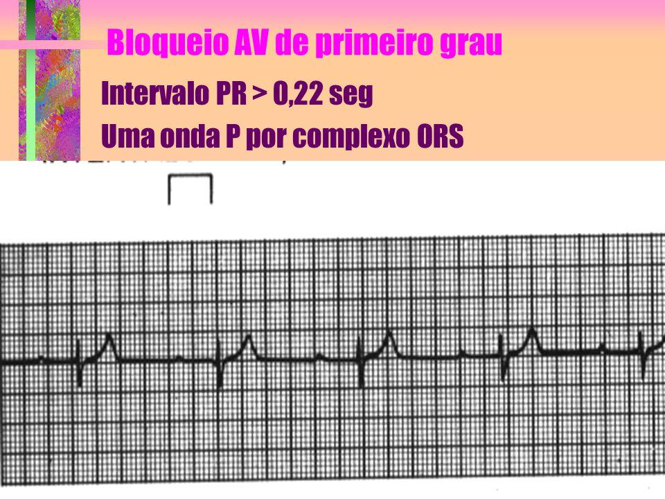Bloqueio AV de primeiro grau Intervalo PR > 0,22 seg Uma onda P por complexo ORS