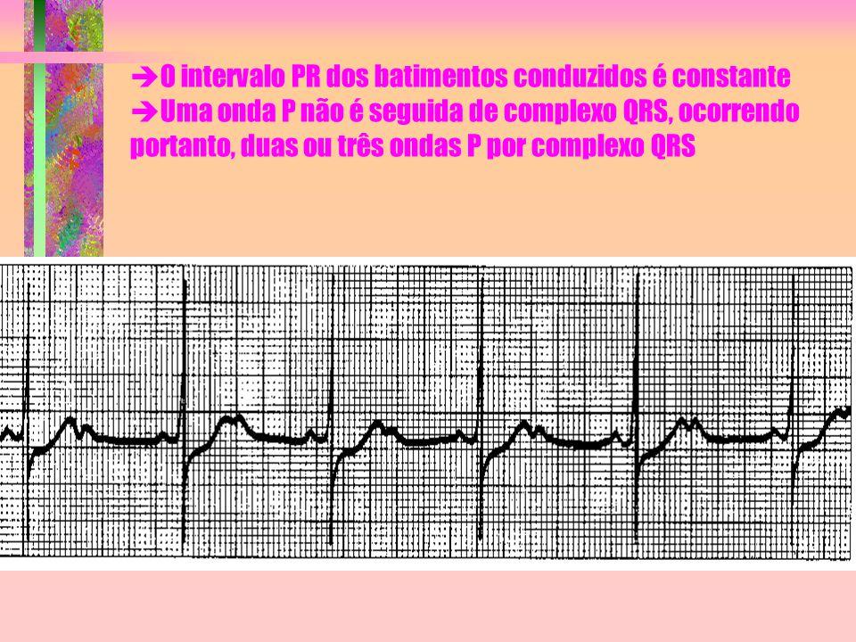  O intervalo PR dos batimentos conduzidos é constante  Uma onda P não é seguida de complexo QRS, ocorrendo portanto, duas ou três ondas P por comple