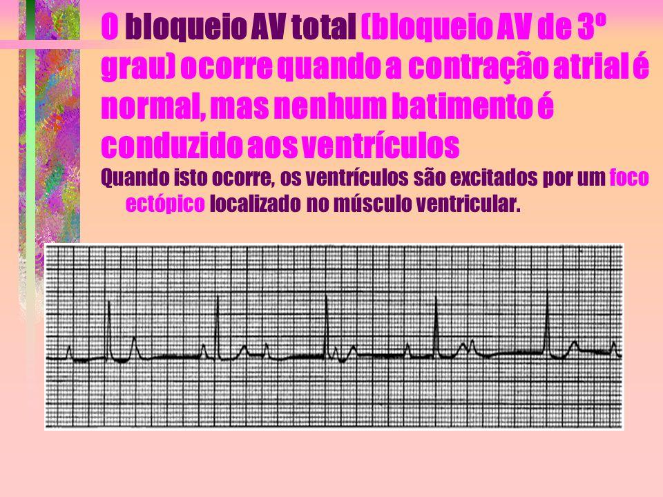 O bloqueio AV total (bloqueio AV de 3º grau) ocorre quando a contração atrial é normal, mas nenhum batimento é conduzido aos ventrículos Quando isto o