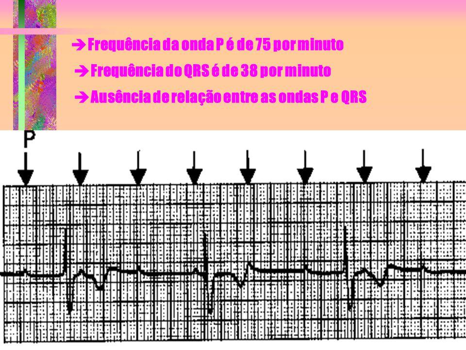  Frequência da onda P é de 75 por minuto  Frequência do QRS é de 38 por minuto  Ausência de relação entre as ondas P e QRS