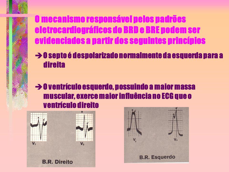 O mecanismo responsável pelos padrões eletrocardiográficos do BRD e BRE podem ser evidenciados a partir dos seguintes princípios  O septo é despolari