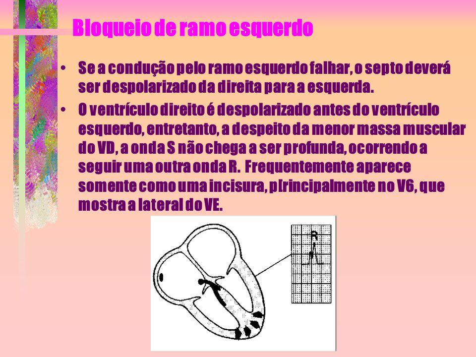 Bloqueio de ramo esquerdo Se a condução pelo ramo esquerdo falhar, o septo deverá ser despolarizado da direita para a esquerda. O ventrículo direito é