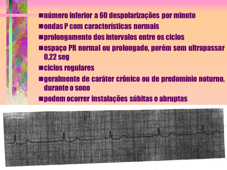 número inferior a 60 despolarizações por minuto ondas P com características normais prolongamento dos intervalos entre os ciclos espaço PR normal ou p