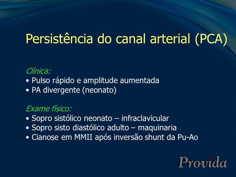 Persistência do canal arterial (PCA) Clínica: Pulso rápido e amplitude aumentada PA divergente (neonato) Exame físico: Sopro sistólico neonato – infra