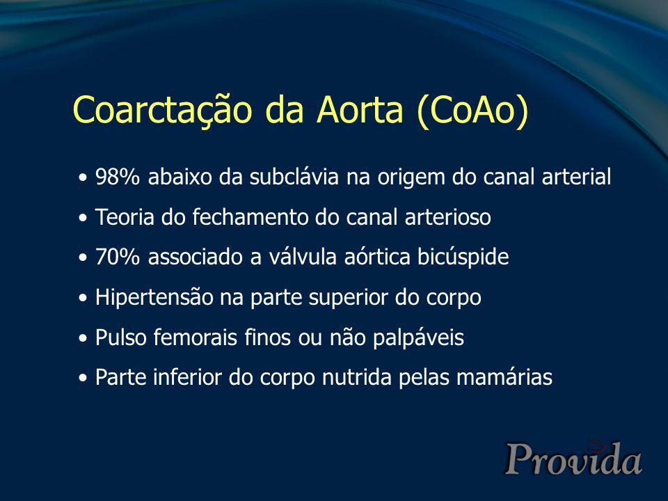 Coarctação da Aorta (CoAo) 98% abaixo da subclávia na origem do canal arterial Teoria do fechamento do canal arterioso 70% associado a válvula aórtica