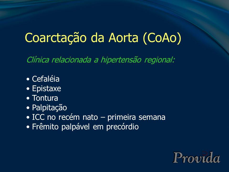 Coarctação da Aorta (CoAo) Clínica relacionada a hipertensão regional: Cefaléia Epistaxe Tontura Palpitação ICC no recém nato – primeira semana Frêmit