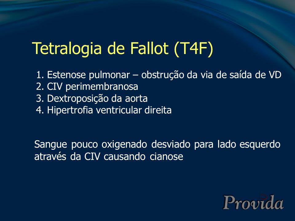 Tetralogia de Fallot (T4F) 1.Estenose pulmonar – obstrução da via de saída de VD 2.CIV perimembranosa 3.Dextroposição da aorta 4.Hipertrofia ventricul