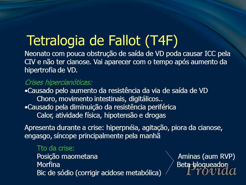 Tetralogia de Fallot (T4F) Neonato com pouca obstrução de saída de VD poda causar ICC pela CIV e não ter cianose. Vai aparecer com o tempo após aument