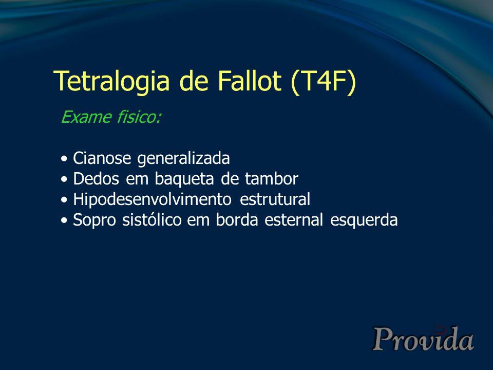 Tetralogia de Fallot (T4F) Exame fisico: Cianose generalizada Dedos em baqueta de tambor Hipodesenvolvimento estrutural Sopro sistólico em borda ester