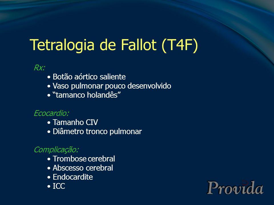 """Tetralogia de Fallot (T4F) Rx: Botão aórtico saliente Vaso pulmonar pouco desenvolvido """"tamanco holandês"""" Ecocardio: Tamanho CIV Diâmetro tronco pulmo"""