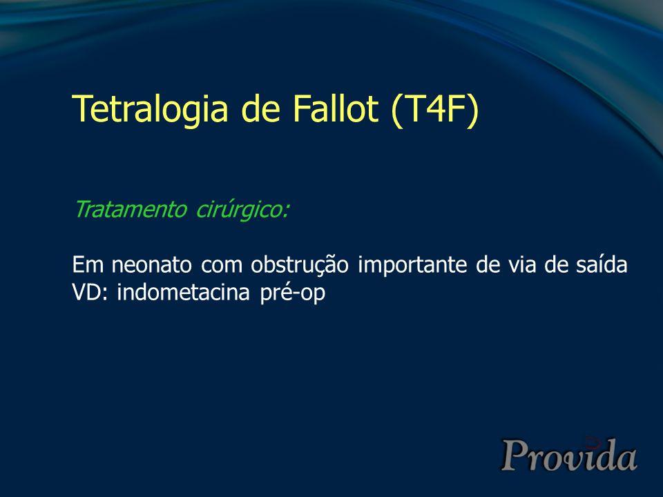 Tetralogia de Fallot (T4F) Tratamento cirúrgico: Em neonato com obstrução importante de via de saída VD: indometacina pré-op