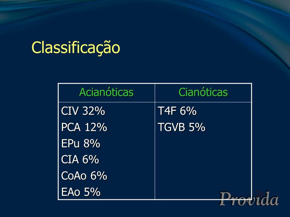 Tetralogia de Fallot (T4F) 1.Estenose pulmonar – obstrução da via de saída de VD 2.CIV perimembranosa 3.Dextroposição da aorta 4.Hipertrofia ventricular direita Sangue pouco oxigenado desviado para lado esquerdo através da CIV causando cianose