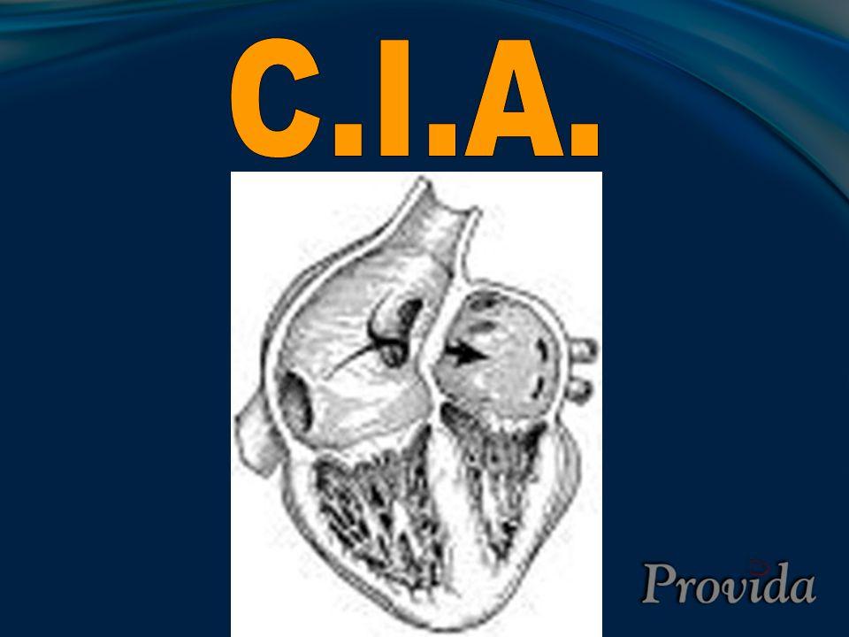 Tetralogia de Fallot (T4F) Neonato com pouca obstrução de saída de VD poda causar ICC pela CIV e não ter cianose.