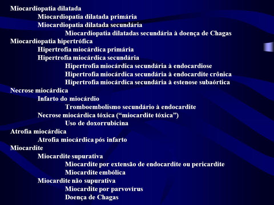 Miocardiopatia dilatada Miocardiopatia dilatada primária Miocardiopatia dilatada secundária Miocardiopatia dilatadas secundária à doença de Chagas Miocardiopatia hipertrófica Hipertrofia miocárdica primária Hipertrofia miocárdica secundária Hipertrofia miocárdica secundária à endocardiose Hipertrofia miocárdica secundária à endocardite crônica Hipertrofia miocárdica secundária à estenose subaórtica Necrose miocárdica Infarto do miocárdio Tromboembolismo secundário à endocardite Necrose miocárdica tóxica ( miocardite tóxica ) Uso de doxorrubicina Atrofia miocárdica Atrofia miocárdica pós infarto Miocardite Miocardite supurativa Miocardite por extensão de endocardite ou pericardite Miocardite embólica Miocardite não supurativa Miocardite por parvovírus Doença de Chagas