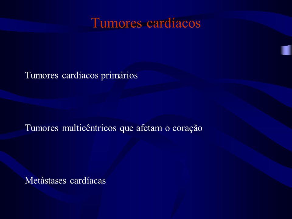 Tumores cardíacos Tumores cardíacos primários Tumores multicêntricos que afetam o coração Metástases cardíacas
