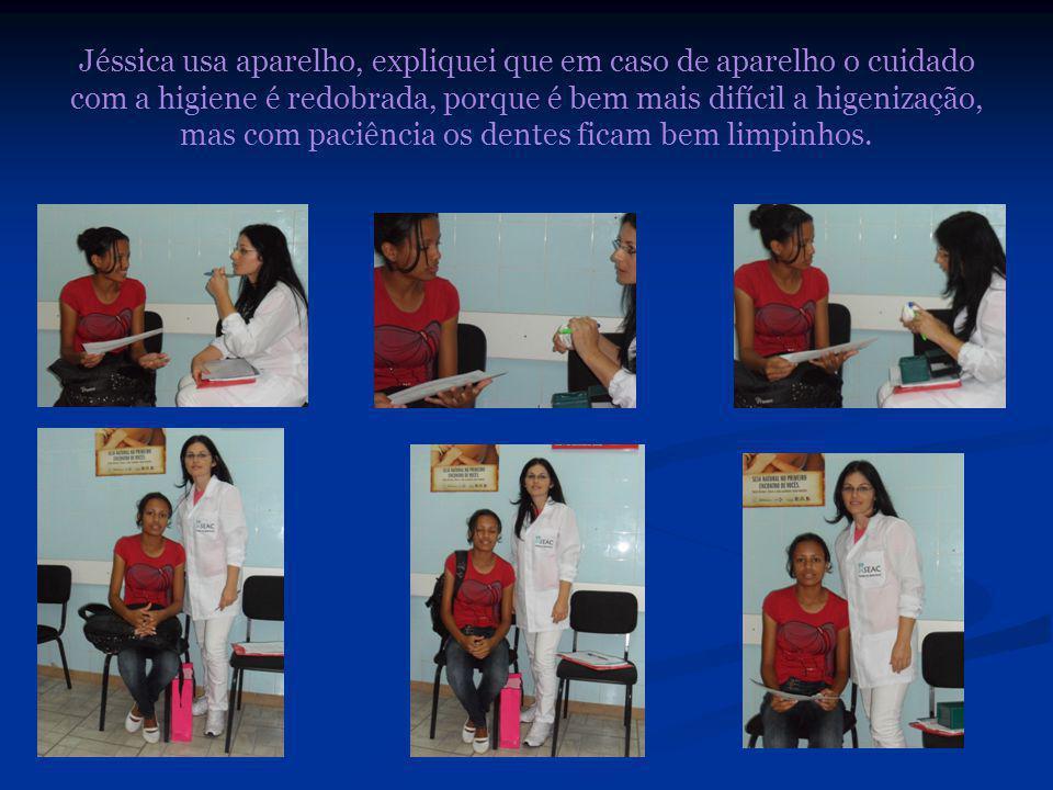 Jéssica usa aparelho, expliquei que em caso de aparelho o cuidado com a higiene é redobrada, porque é bem mais difícil a higenização, mas com paciência os dentes ficam bem limpinhos.