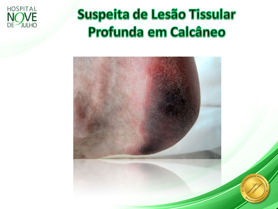 Curativos Profiláticos Guideline Second Edition by (NPUAP); (EPUAP); (PPPIA) 2014 Avaliar a pele para detectar sinais de desenvolvimento de úlceras de pressão em cada troca de curativo (diariamente).
