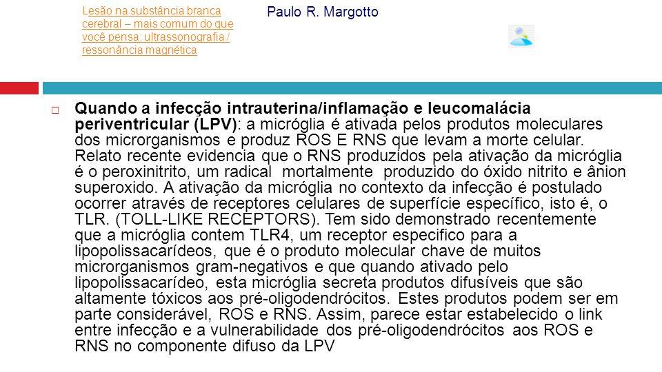  Quando a infecção intrauterina/inflamação e leucomalácia periventricular (LPV): a micróglia é ativada pelos produtos moleculares dos microrganismos