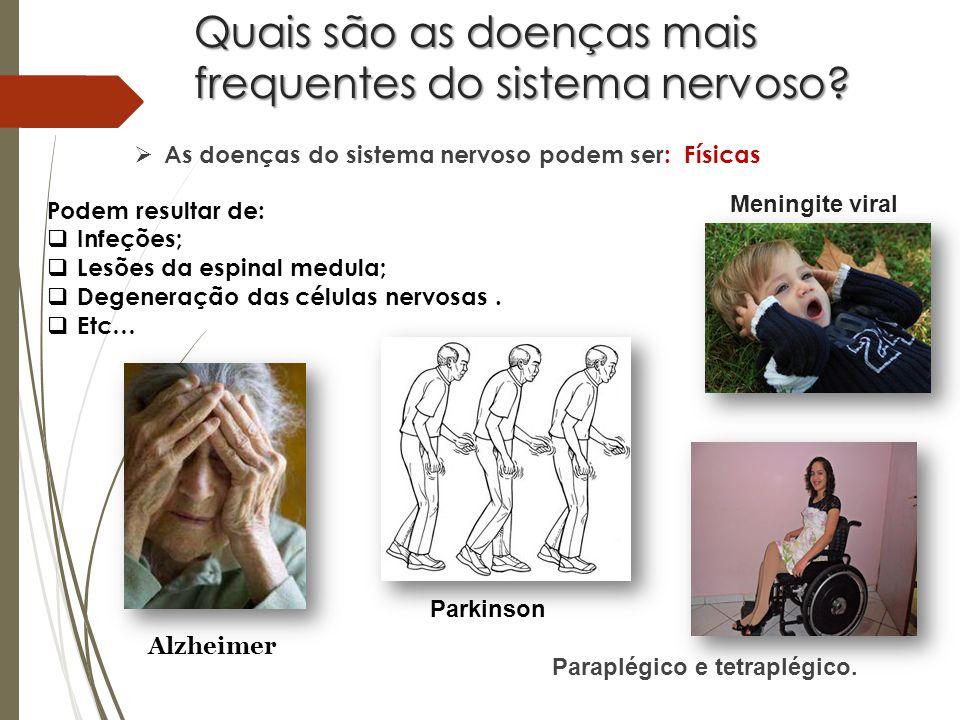 Quais são as doenças mais frequentes do sistema nervoso.