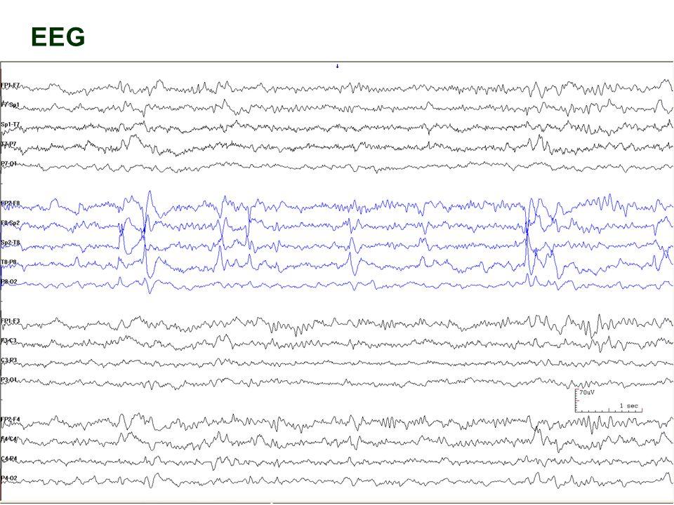 33 EEG