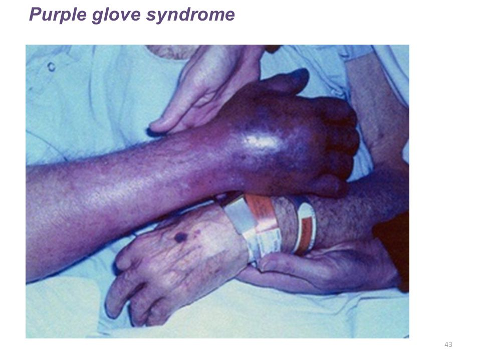 43 Purple glove syndrome