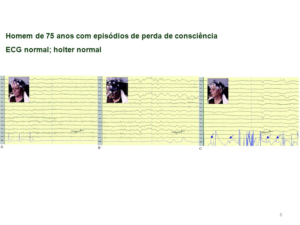 8 Homem de 75 anos com episódios de perda de consciência ECG normal; holter normal
