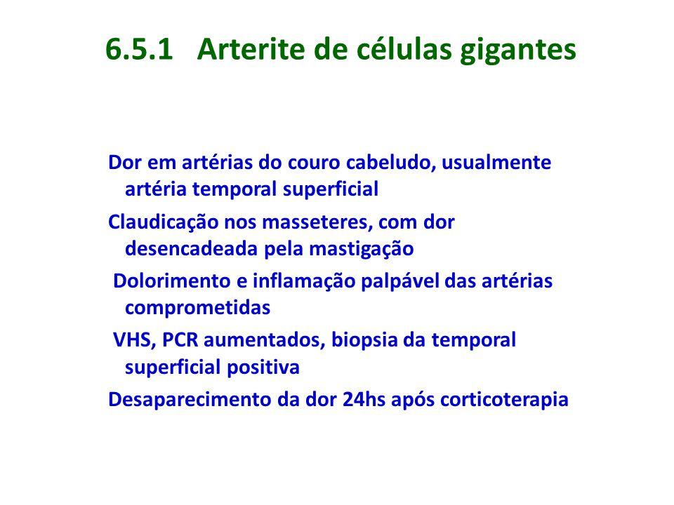6.5.1 Arterite de células gigantes Dor em artérias do couro cabeludo, usualmente artéria temporal superficial Claudicação nos masseteres, com dor dese
