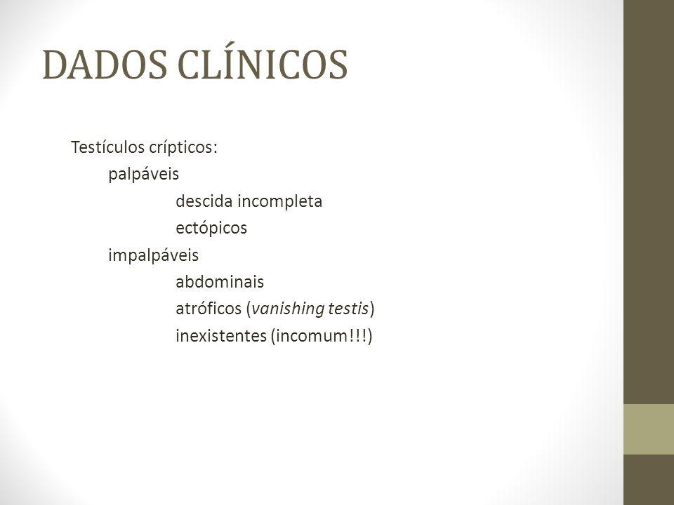 DADOS CLÍNICOS Testículos crípticos: palpáveis descida incompleta ectópicos impalpáveis abdominais atróficos (vanishing testis) inexistentes (incomum!
