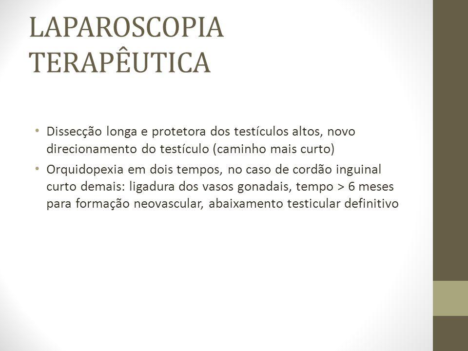 LAPAROSCOPIA TERAPÊUTICA Dissecção longa e protetora dos testículos altos, novo direcionamento do testículo (caminho mais curto) Orquidopexia em dois